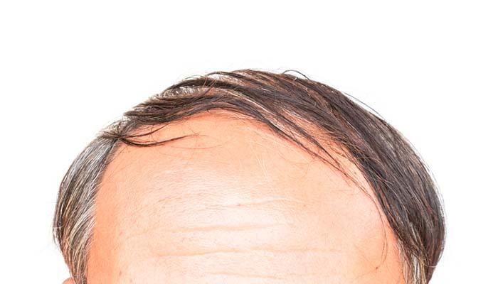 en iyi saç ekim tekniği nedir