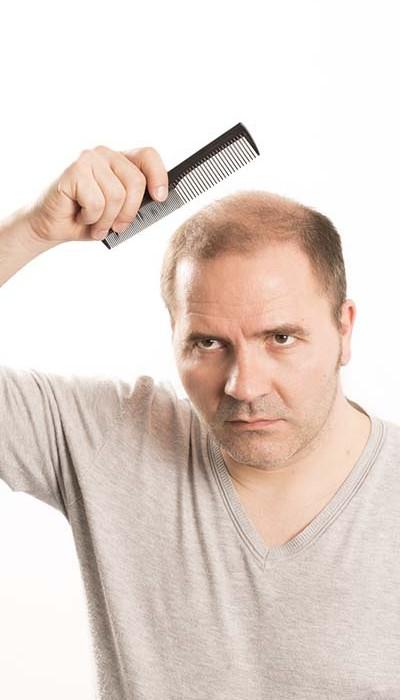 ön saç çizgisi belirleme yöntemi