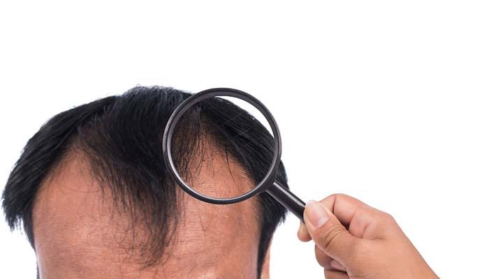 ön saç çizgisi