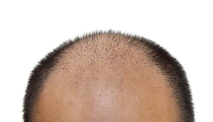 saç dökülmesine neden olan faktörler