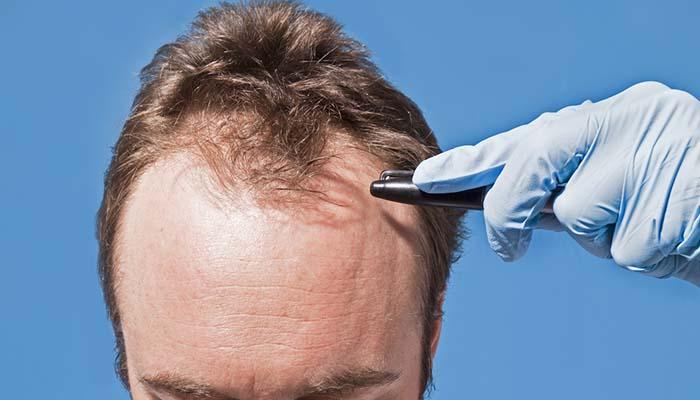 saç ekimi çizgisi belirleme