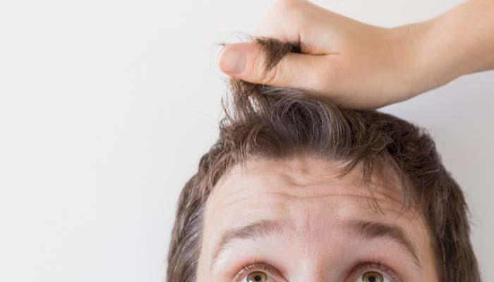 saç ekimi nasıl yapılır