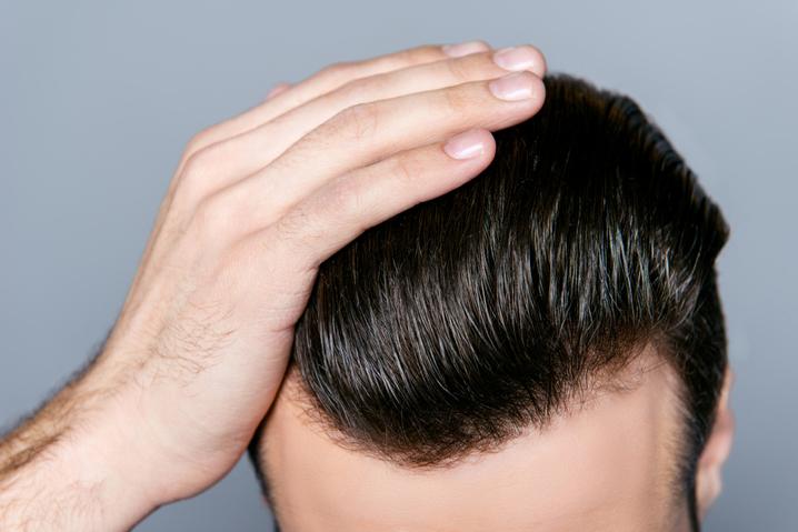 Saç ekimi öncesi dikkat edilmesi gerekenler nelerdir?