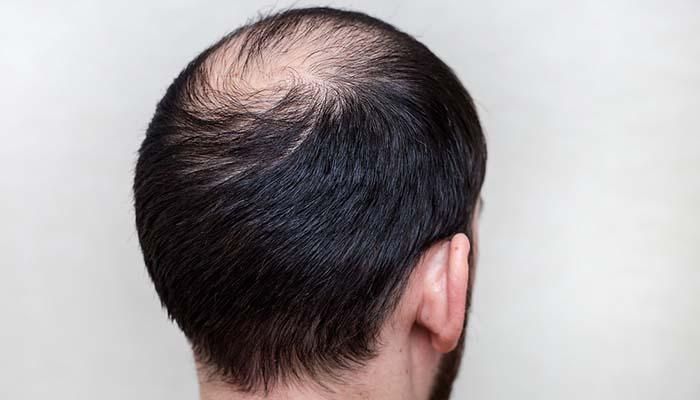 saç ekiminde yeni yöntemler