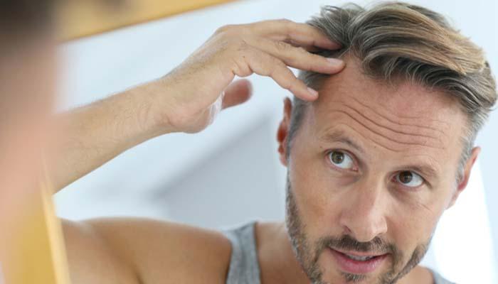 saç kaybı nedenleri