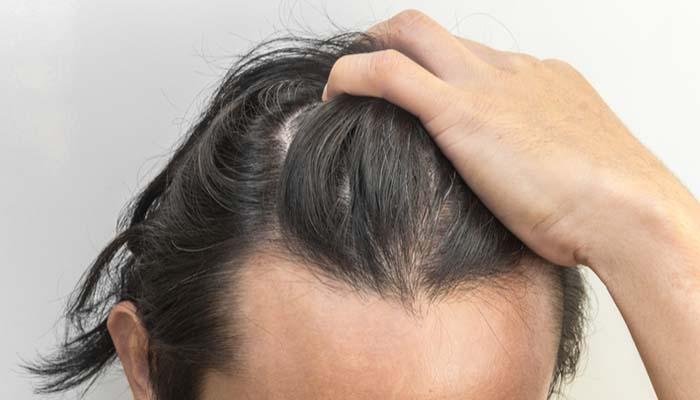 saç kaybı