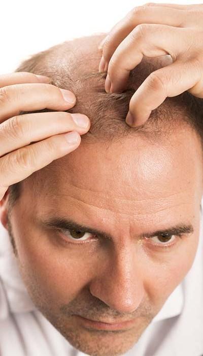 tansiyon hastaları saç ektirebilir mi
